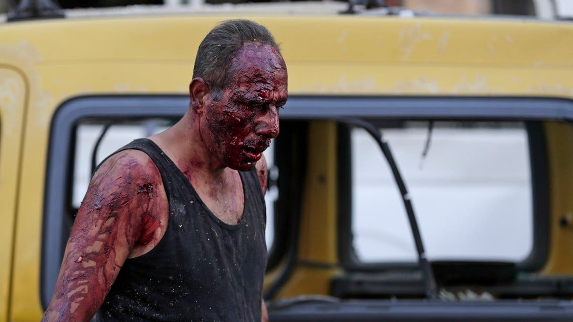 A wounded man walks at the port near the scene of an explosion in the Lebanese capital Beirut. (AFP)