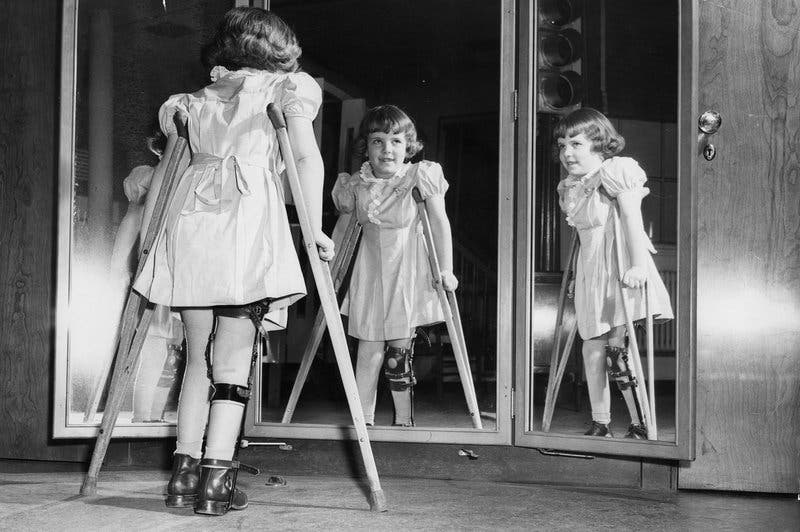 صورة لطفلة عانت من شلل الأطفال