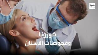 تحذير صادم من الصحة العالمية لأطباء الأسنان بسبب كورونا
