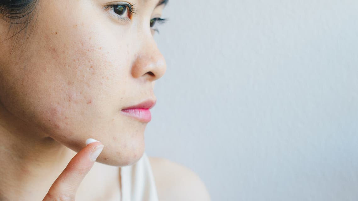 Portrait of young Asian woman having acne problem. stock photo