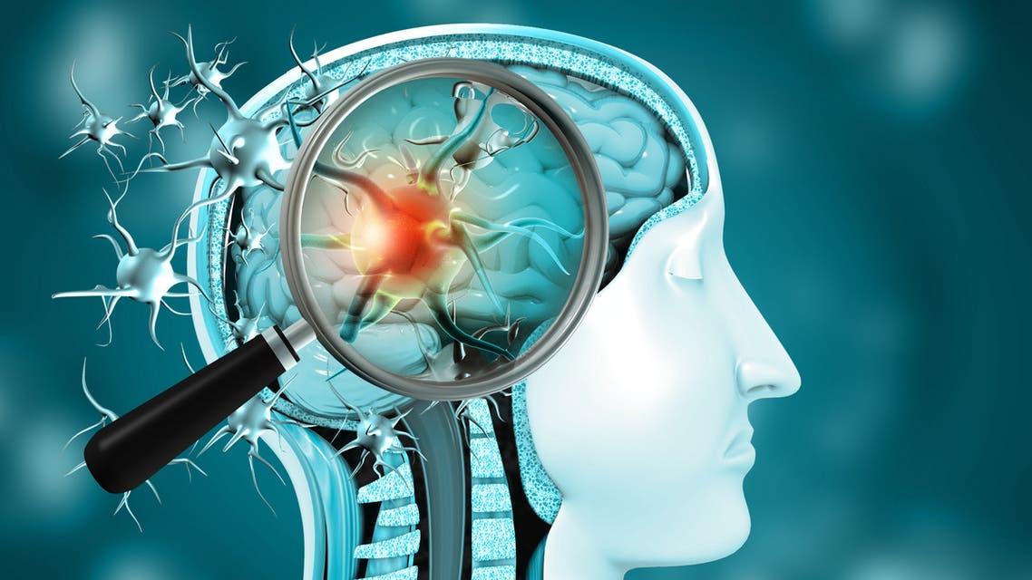 Virus infection in brain stock photo