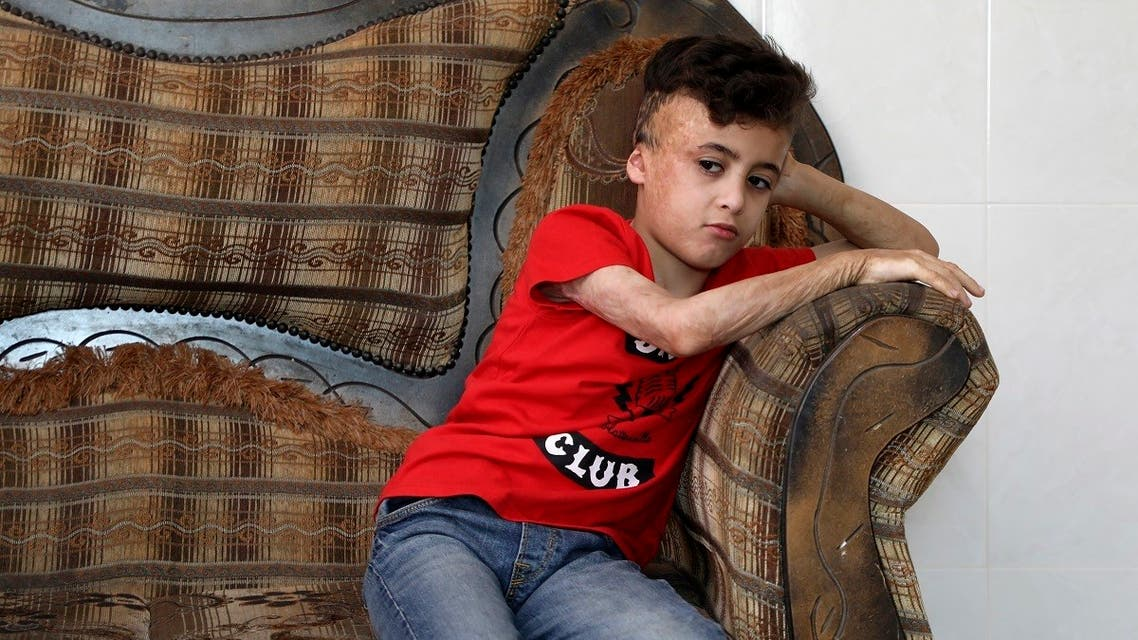 Ahmed Dawabsha, the survivor of the arson attack by Jewish extremists who killed his parents and 18-month-old brother, sits in his grand-parent home in the Israeli occupied West Bank village of Duma on May 18, 2020. (AFP)