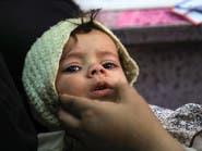مرض قديم يهدد أطفال اليمن.. مسؤول حكومي يحذر
