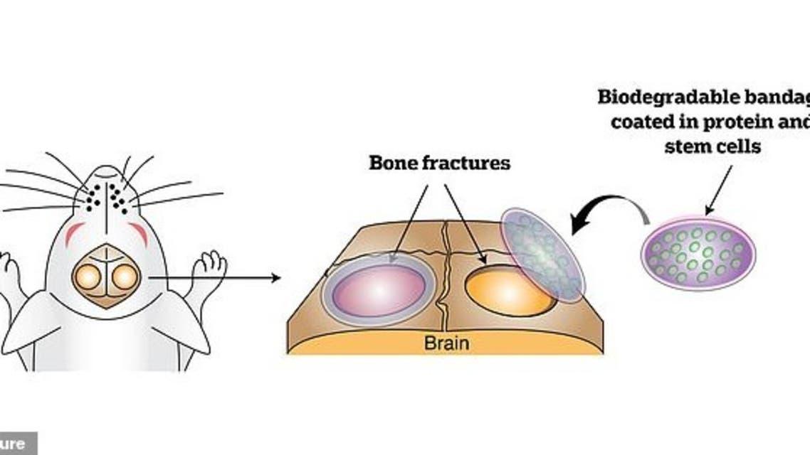كسور العظام