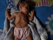 10 آلاف طفل قد يموتون شهريا من سوء التغذية نتيجة كورونا