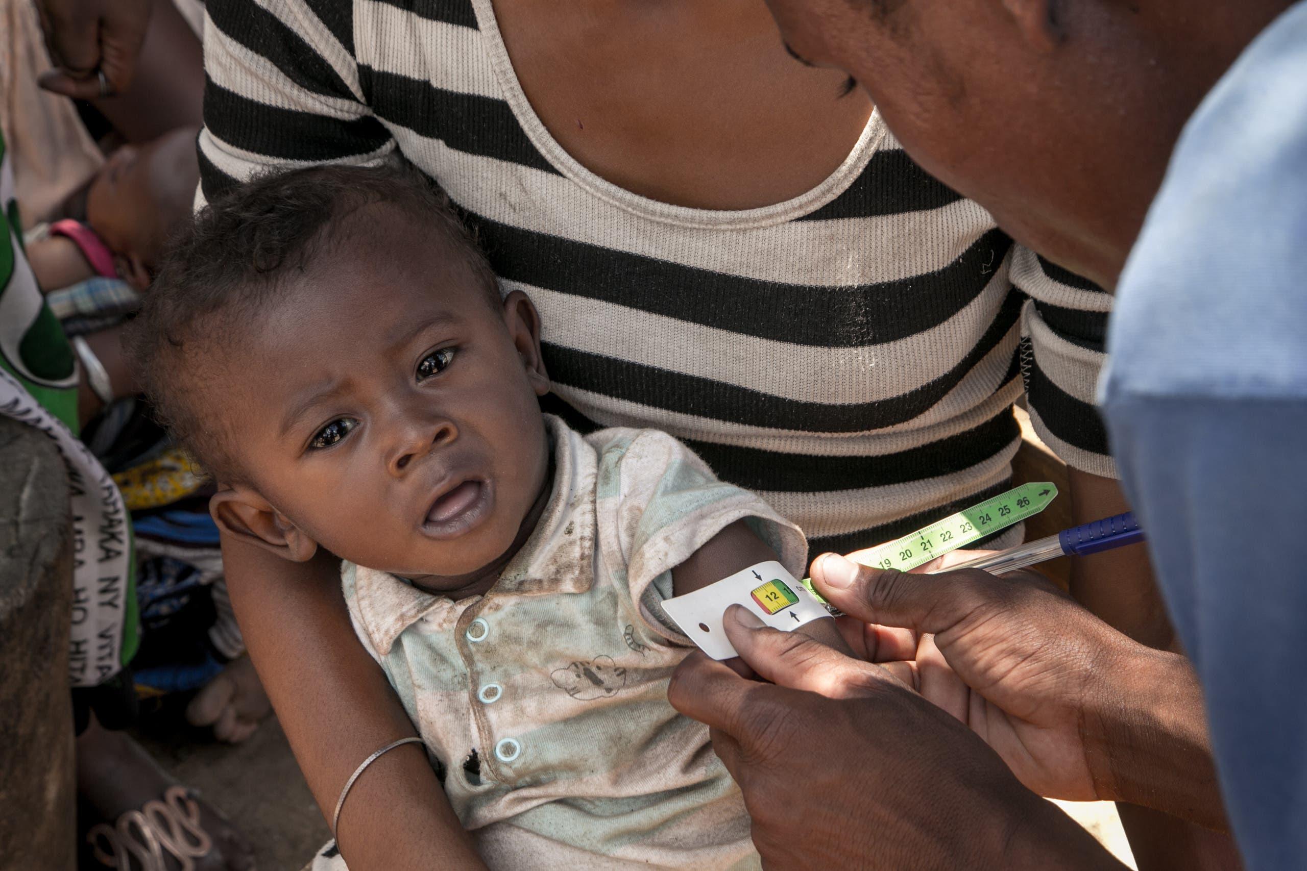 حملة في مدغشقر في 2018 للكشف عن حالات سوء التغذية بين الأطفال