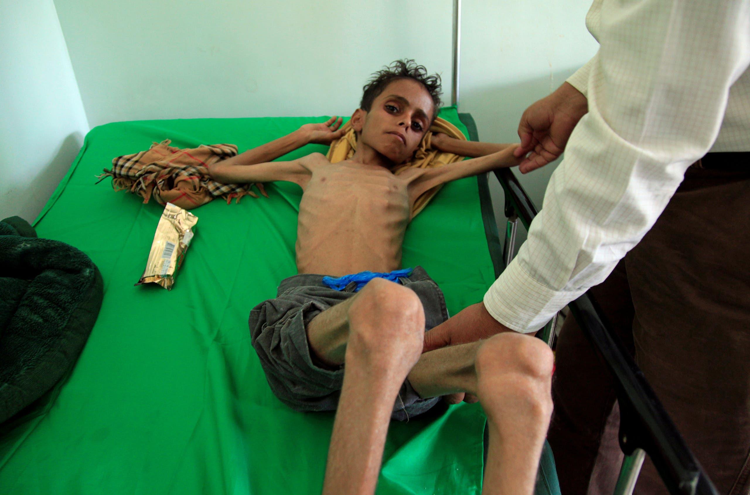 طفل في مستشفى بتعز يعاني من سوء التغذية