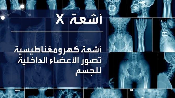 ابتكارات طبية| أشعة X