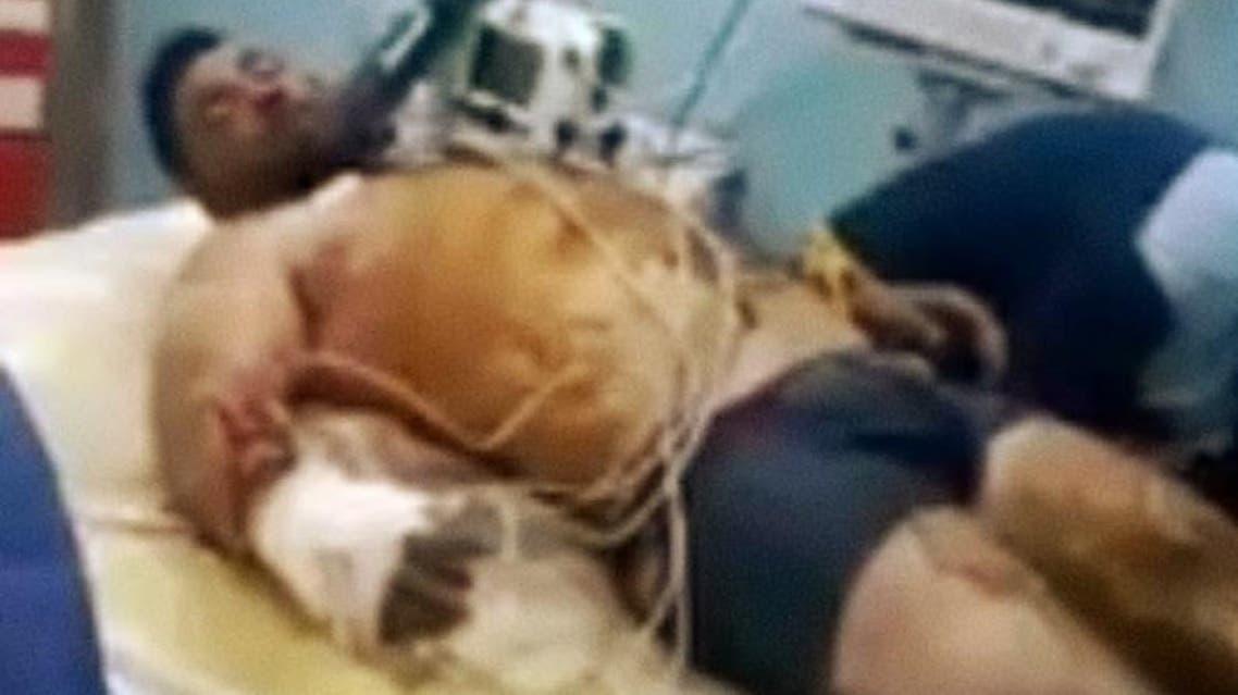 ایران؛ کارگر اخراجی معدن در رودبار خود را به آتش کشید