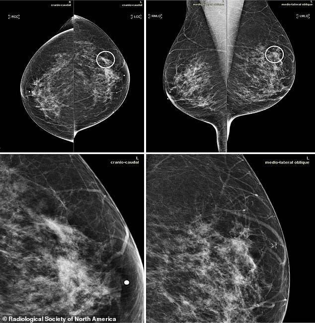 صور فحوص طبية لسرطان الثدي