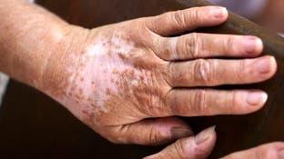 مرض يعاني منه 1% من سكان العالم.. هذه أعراضه وطرق علاجه