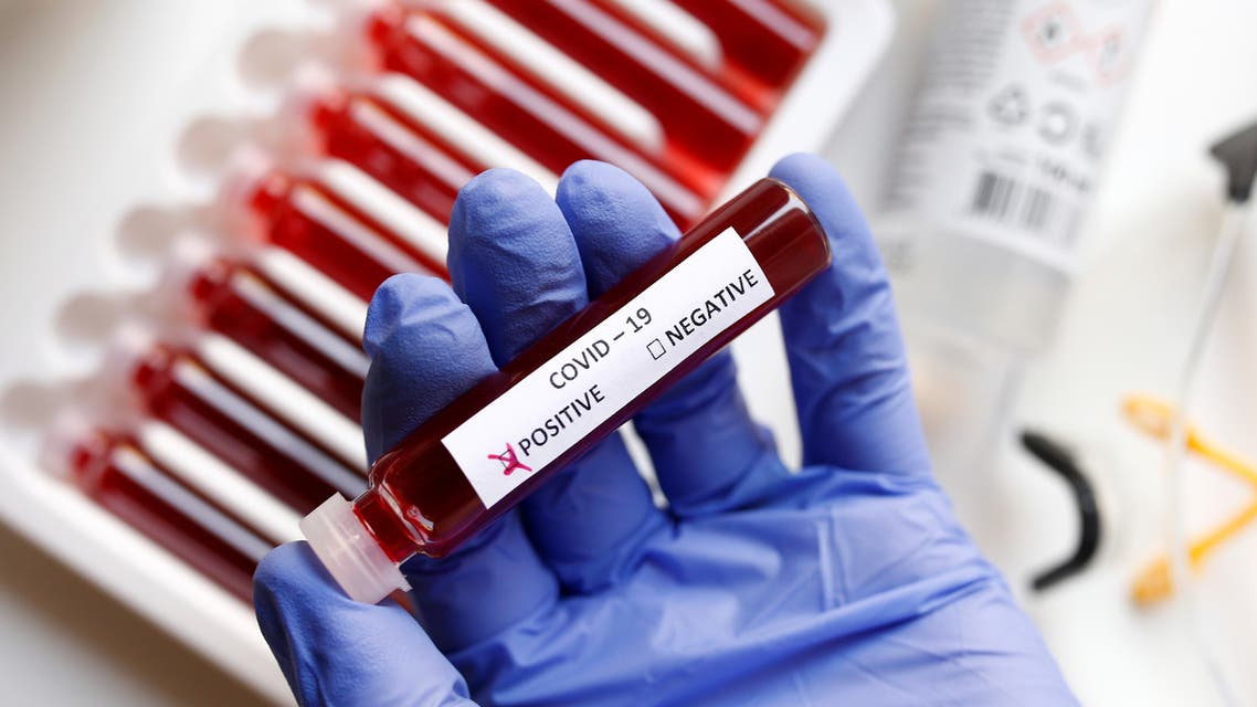 Fake blood is seen in test tubes labelled with the coronavirus (COVID-19) in this illustration taken March 17, 2020. (Reuters)