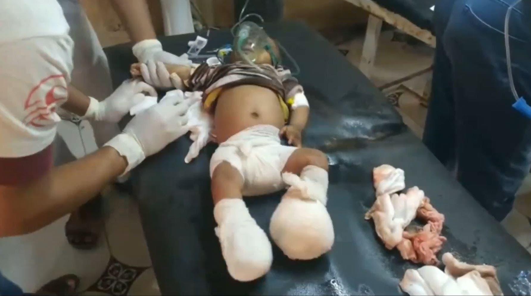 رضيع بين جرحى القصف الحوثي