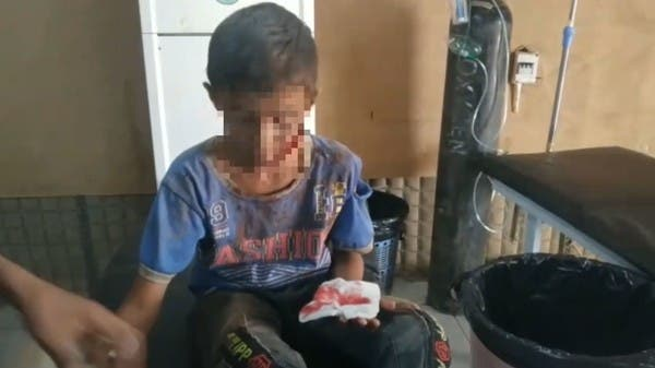 فيديو.. مجزرة حوثية دامية ضد المدنيين بالحديدة