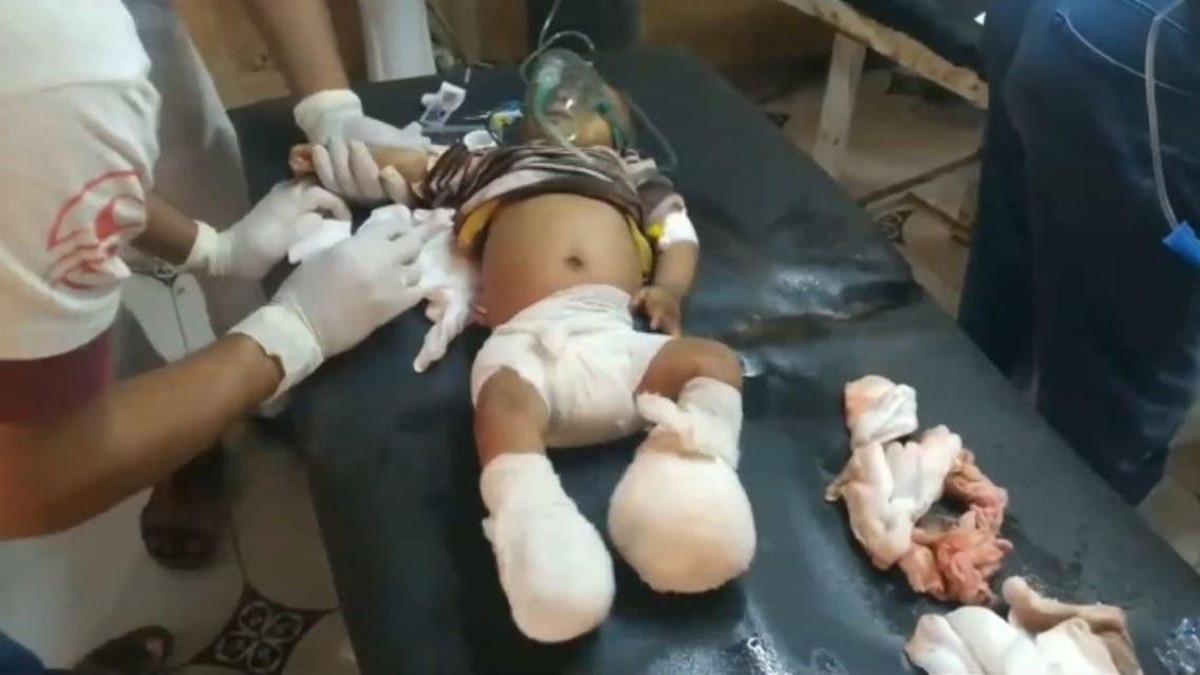 Houthis Malatias Target