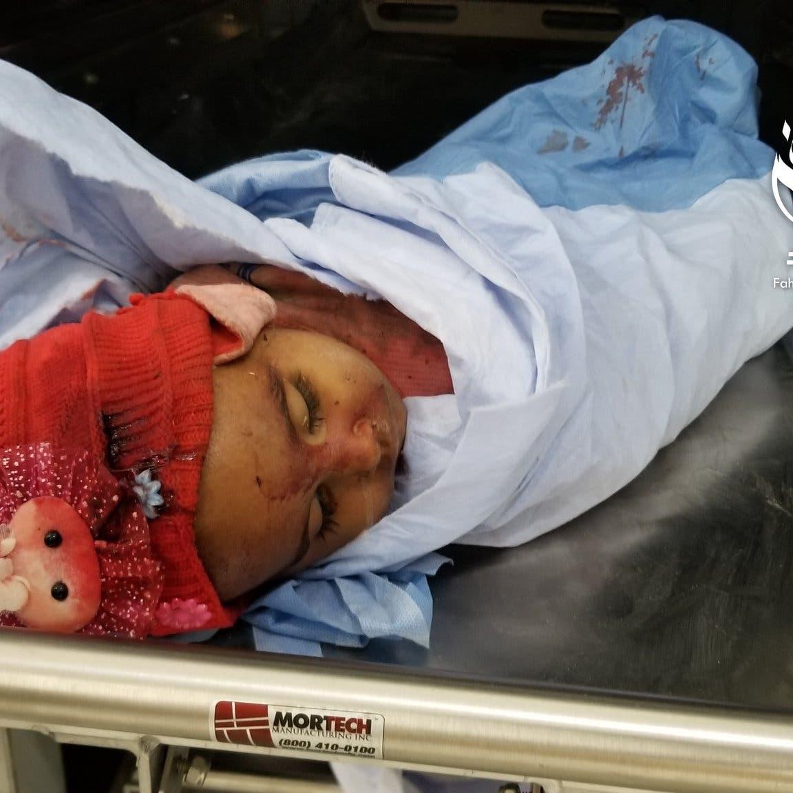 تعز.. مقتل طفلتين وإصابة 4 بينهم امرأة في قصف حوثي