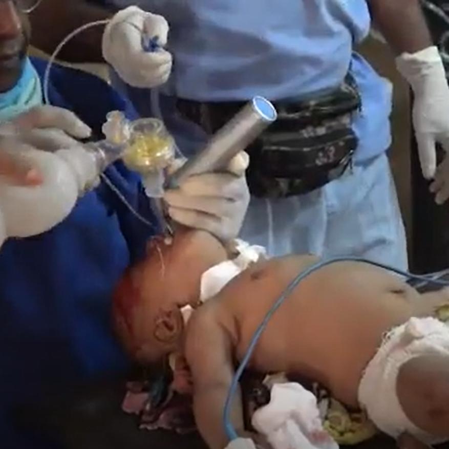 الإرياني: مجزرة الدريهمي جريمة حرب مكتملة الأركان