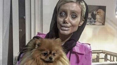 شبيهة أنجلينا جولي المشوهة في إيران.. بأحدث صورة لها