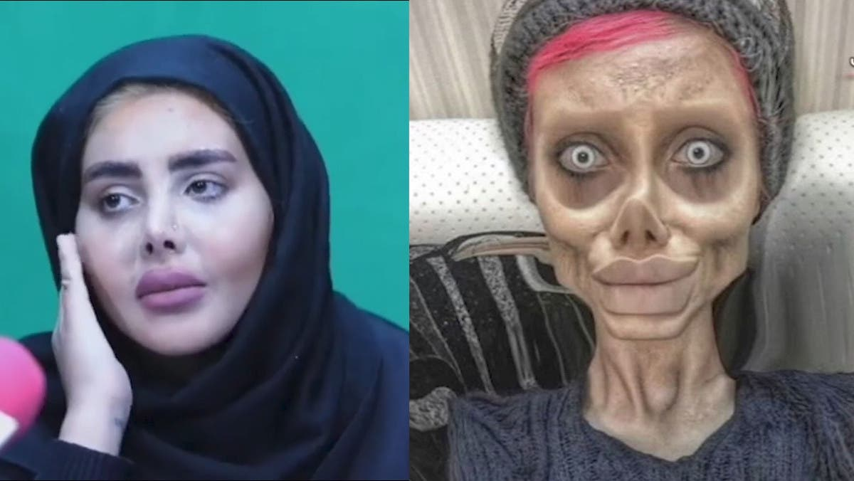 Iranian 'zombie Angelina Jolie' released on bail, shows real face in TV appearance thumbnail