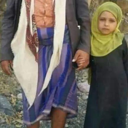 اليمني الذي باع طفلته.. شاهد حديث البائع والمشتري ومحاولة حوثية لدفن الجريمة