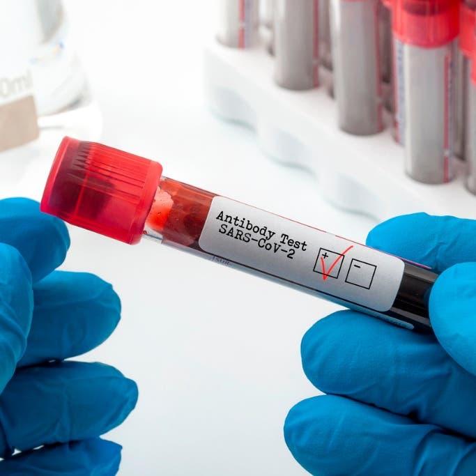 أجسام مضادة لدى 5% فقط من المصابين.. أمل جديد في محاربة كورونا