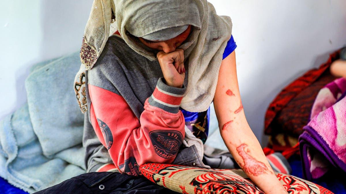 صب عليها الأسيد ضاحكا.. وجه فتاة يمنية مشوه يشعل زوبعة