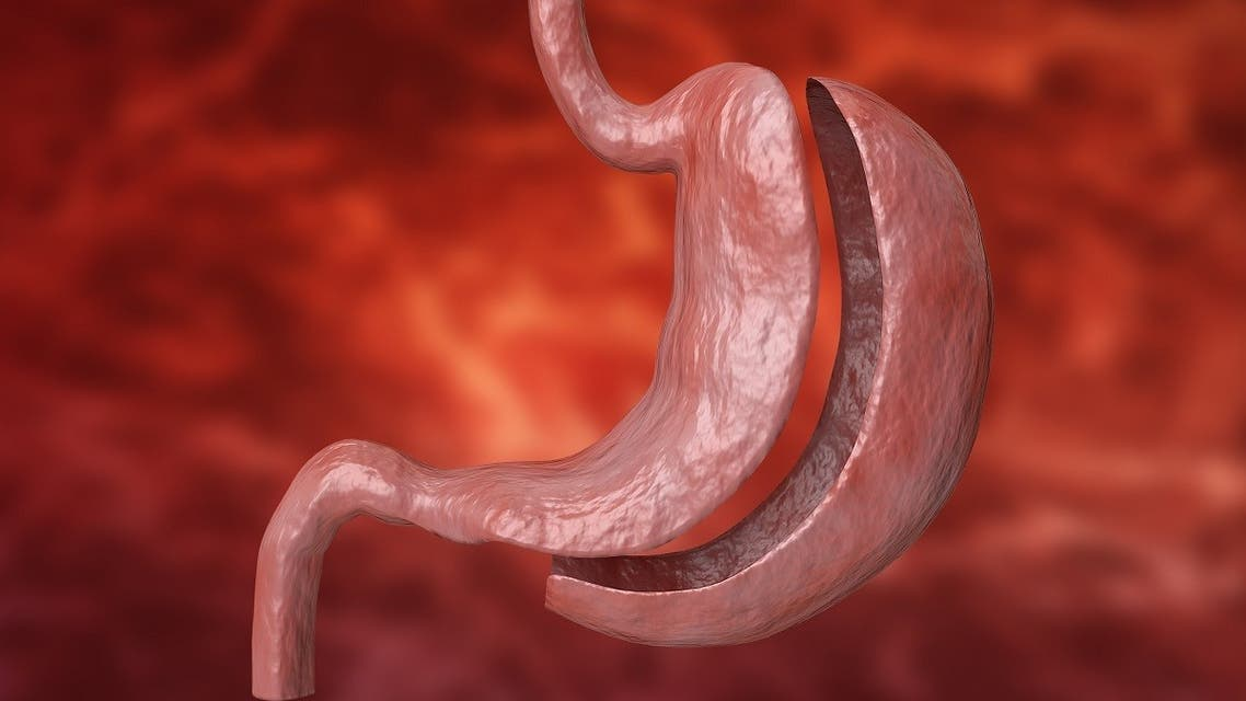 Bariatric surgery with reduction of the size of the stomach for weight loss and loss of body weight. (Gilnature via iStock)