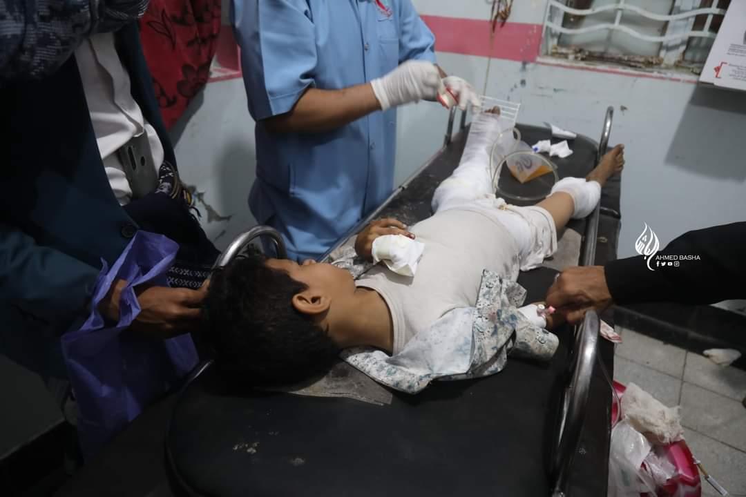 طفل أصيب في القصف الحوثي بتعز