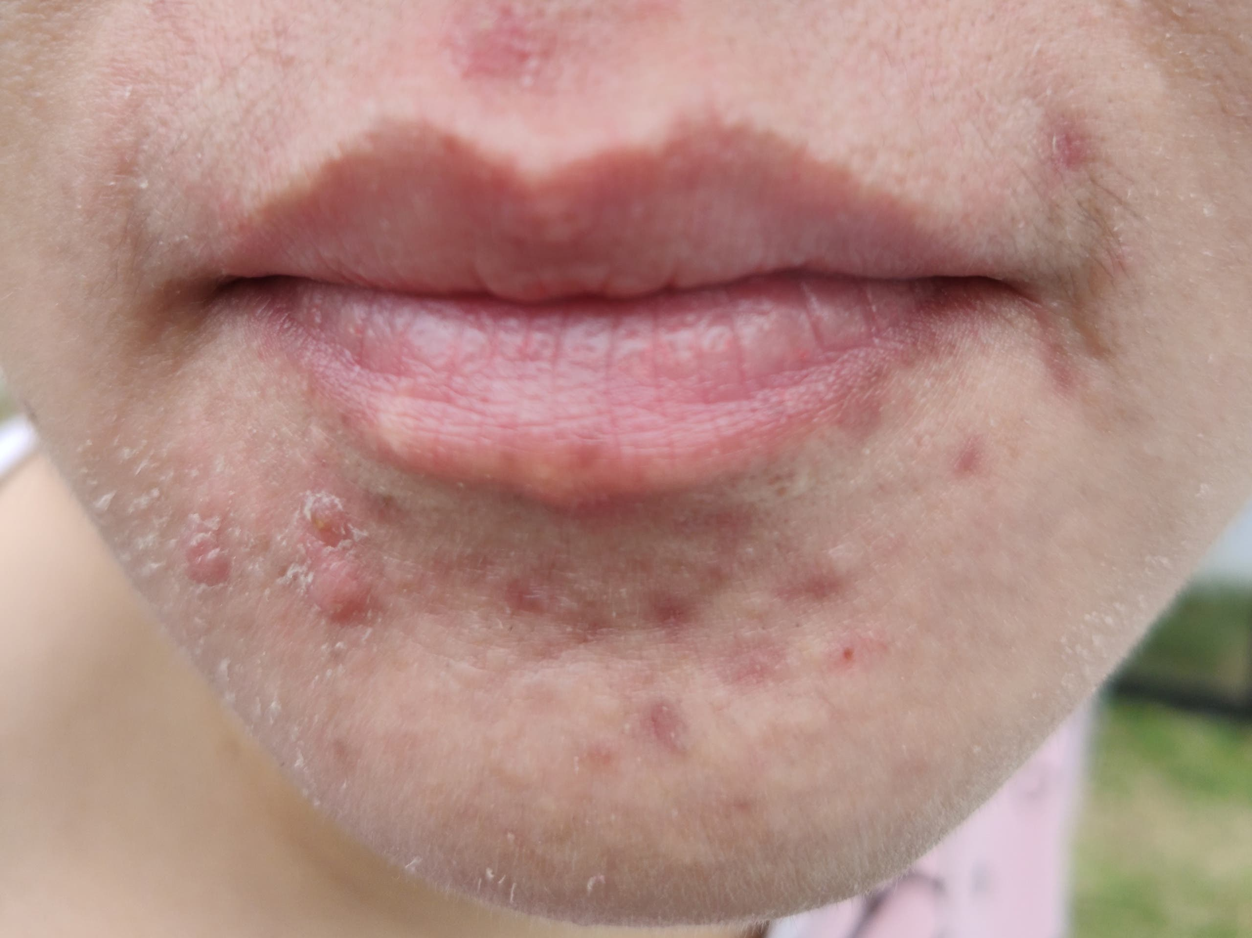 Some people with sensitive skin, and who wear masks for extend periods of time, develop mild skin rashes or dry lips as a result, says Dr Suresh Babu, Al Zahra Hospital Dubai's consultant dermatologist. (Supplied by AZHD)