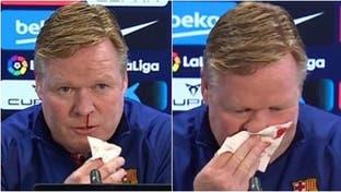 شاهد أنف مدرب برشلونة ينزف دما فينسحب من مؤتمر صحافي