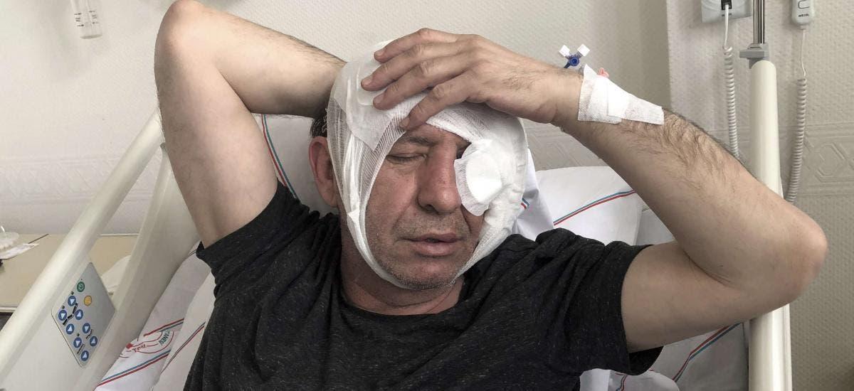 """صحفي تركي تعرض لاعتداء سابق """"أرشيفية"""""""