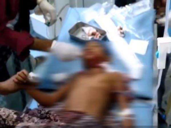فيديو.. إصابة 6 مدنيين بينهم 4 أطفال بقصف حوثي على حيس