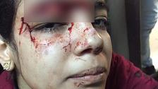 شادی سے انکار پر مصری سرپھرے کا لڑکی پر قاتلانہ حملہ، لڑکی شدید زخمی