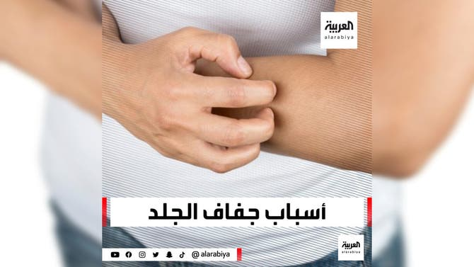أسباب جفاف الجلد