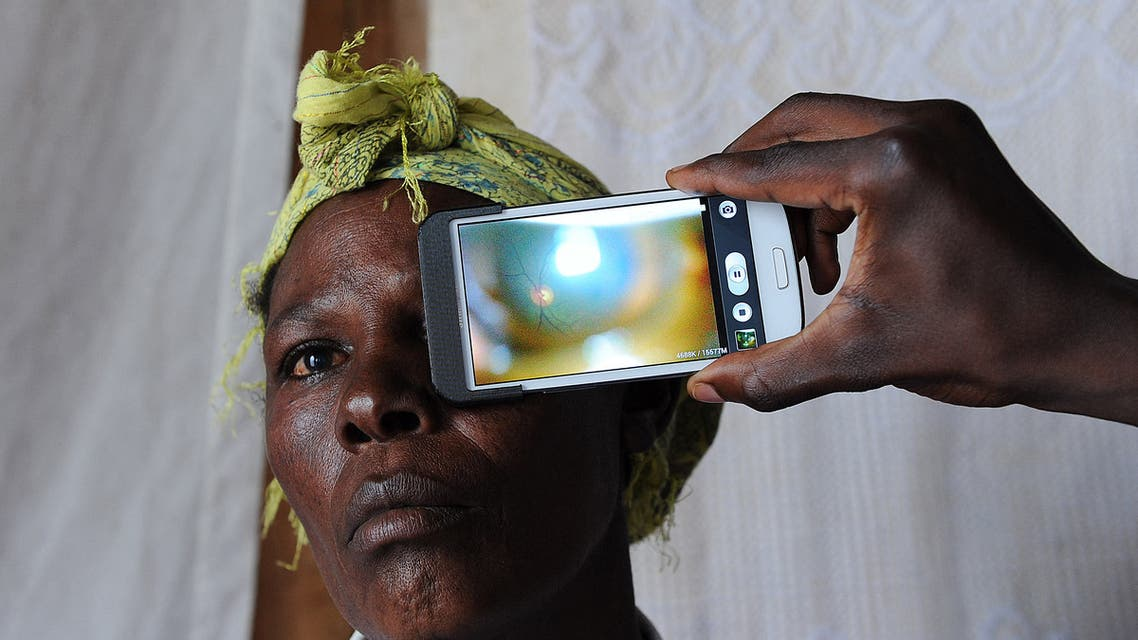 This photo  shows a technician scanning the eye of a woman with a smartphone application (File photo: AFP)