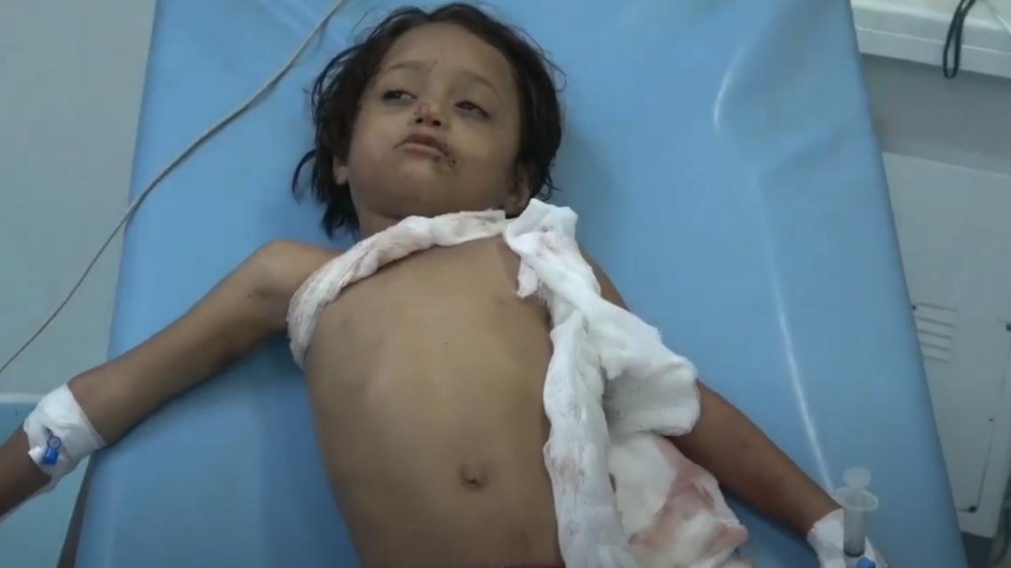 إصابة طفل بقذيفة حوثية