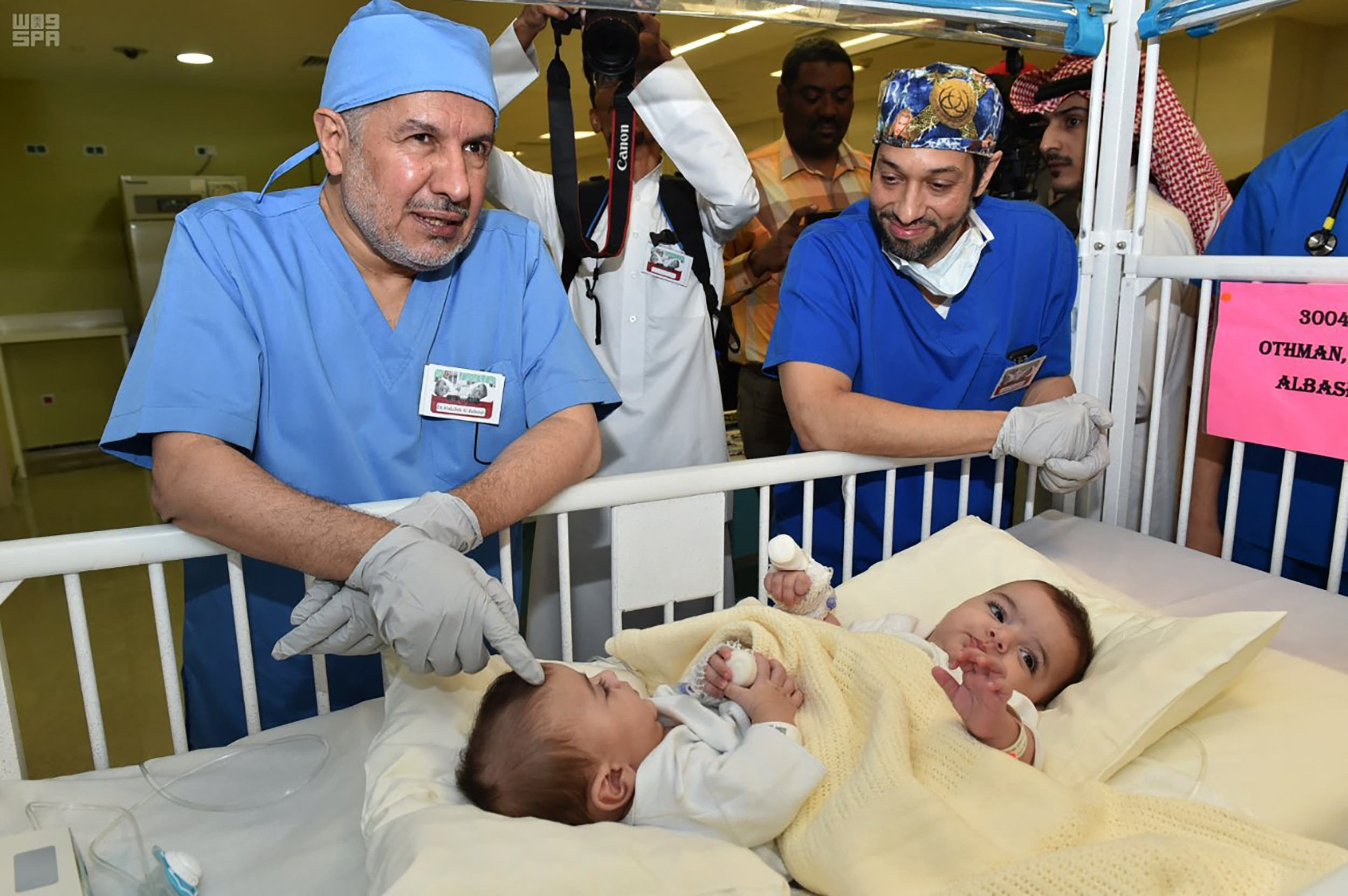 توأم سيامي ليبي قبل عملية فصله في مدينة الملك عبد العزيز الطبية في 2019
