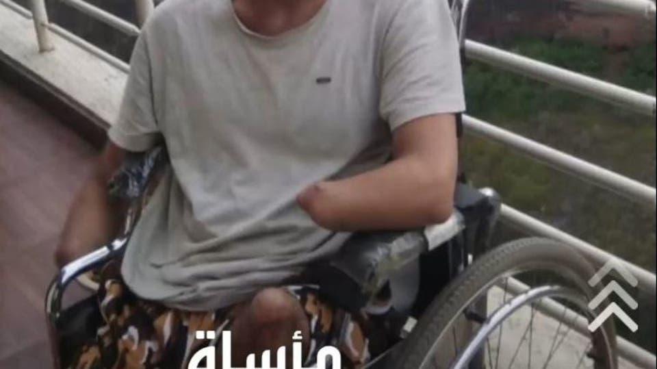 انفجار لغم حوثي يتسبب في فقدان شاب يمني لذراعيه ورجليه وعينيه