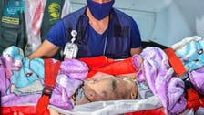 جسمانی طور پر جڑے یمنی بچے علاج کے لیے سعودی عرب منتقل