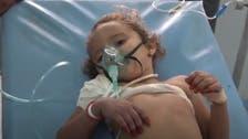 حوثی نشانچی نے 4 سالہ بچی کو گولی مار دی