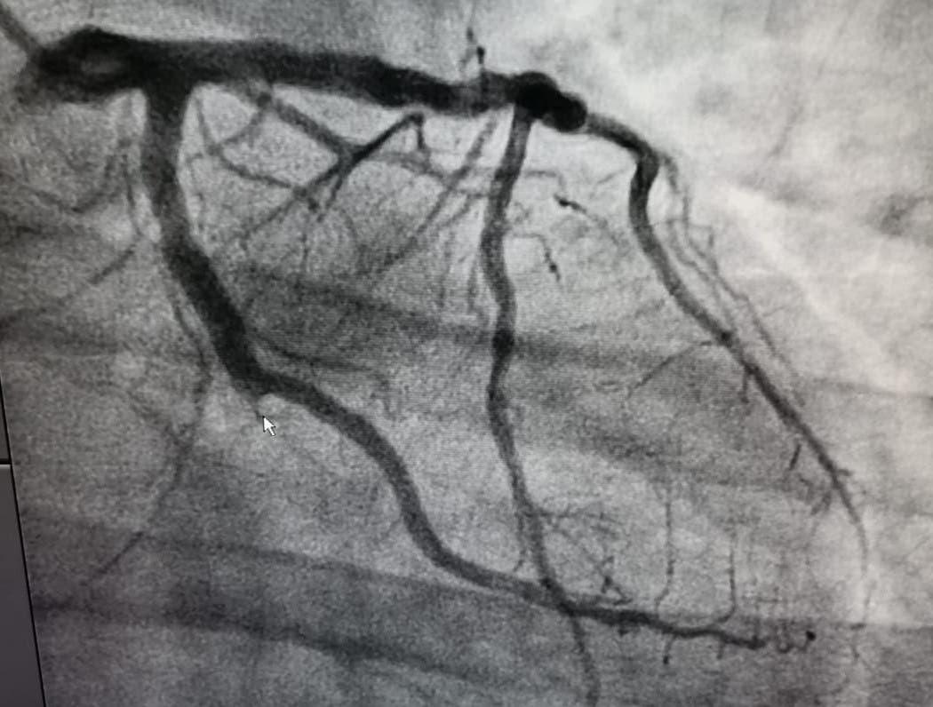 صورة توضع الجلطة القلبية الحادة للمريض