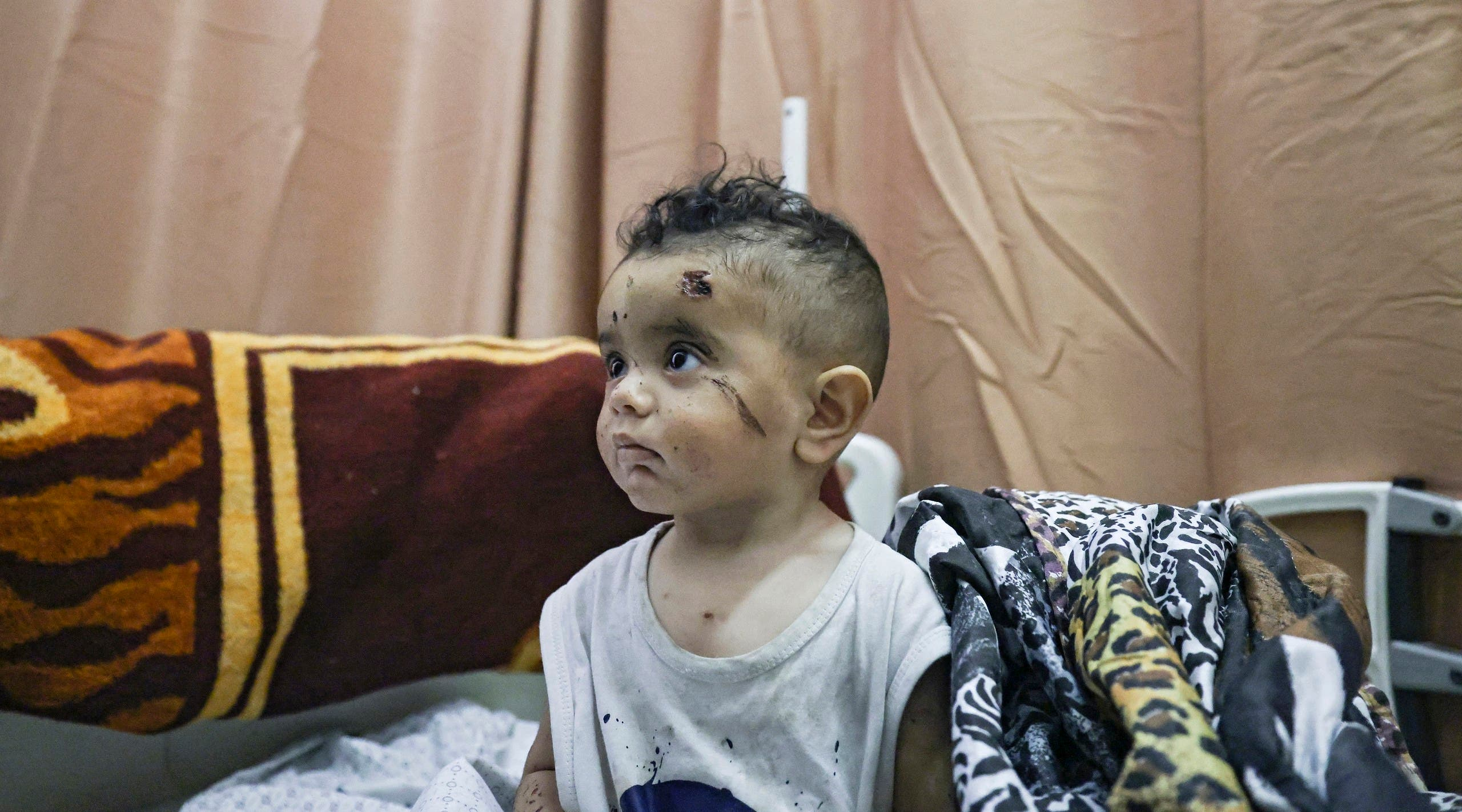 A Palestinian child, who was wounded in overnight Israeli air strikes on the Gaza Strip, receives treatment at Al-Shifa Hospital in the Palestinian enclave on May 16, 2021. (AFP)