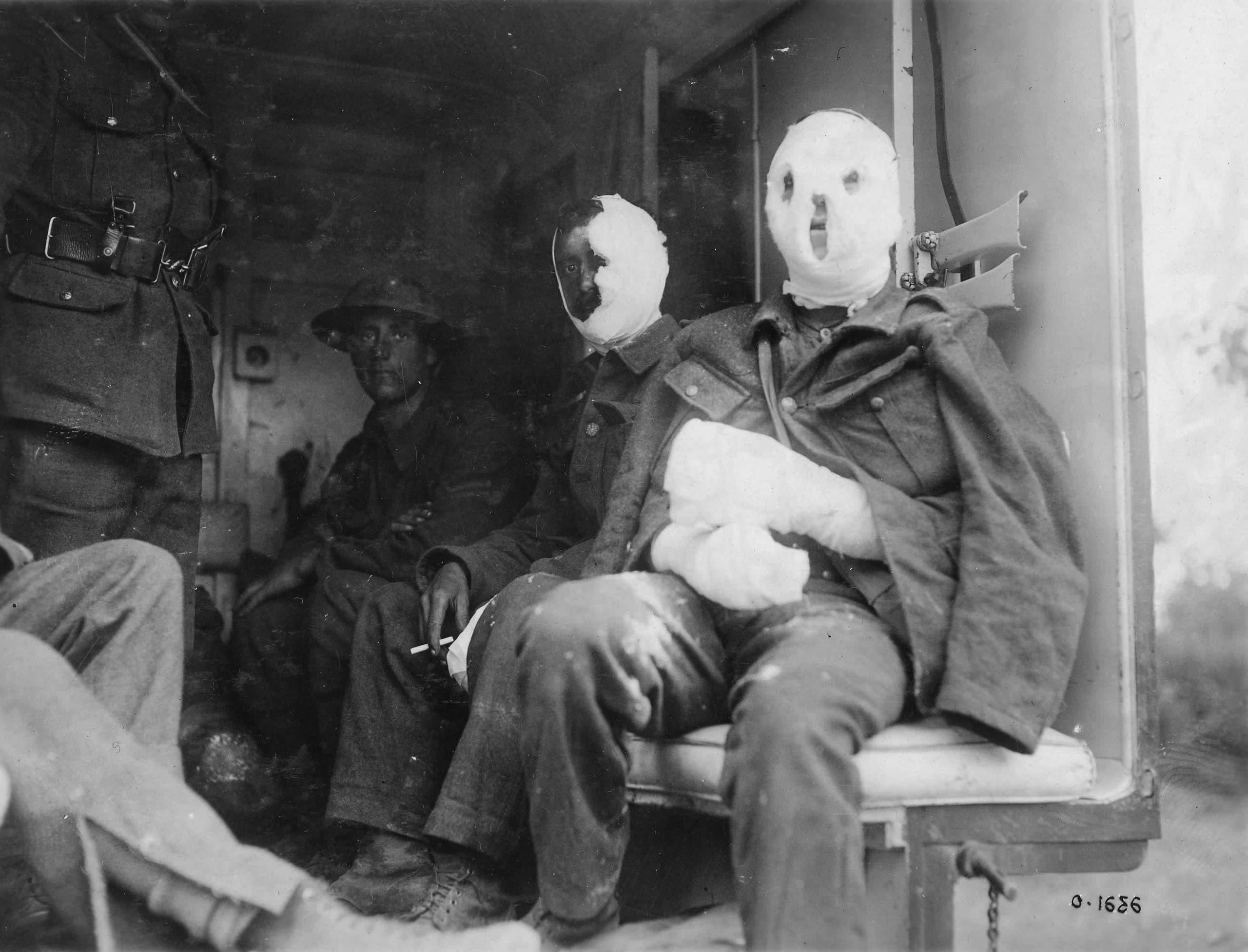 جنود بريطانيون مصابون عقب استهدافهم بغاز الخردل من قبل الألمان