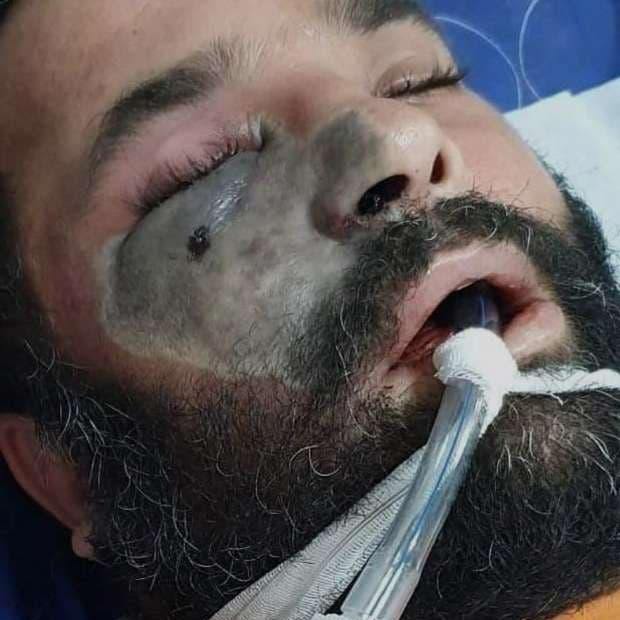 """مصر.. الصحة تنفي ظهور """"الفطر الأسود"""" لكورونا بالبلاد"""