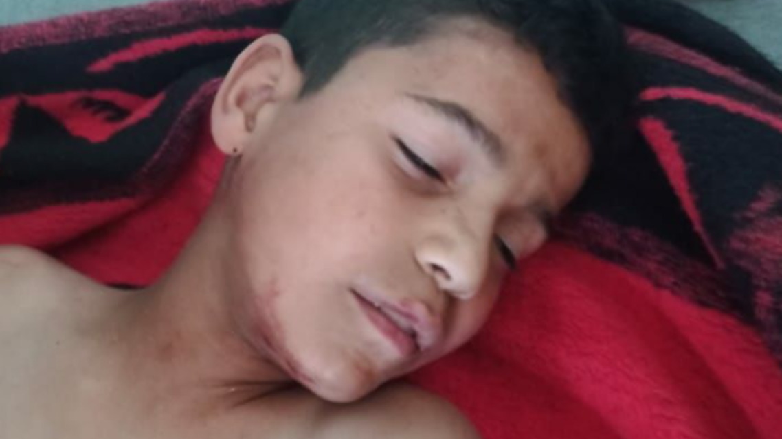 طفل إدلب المقنوص