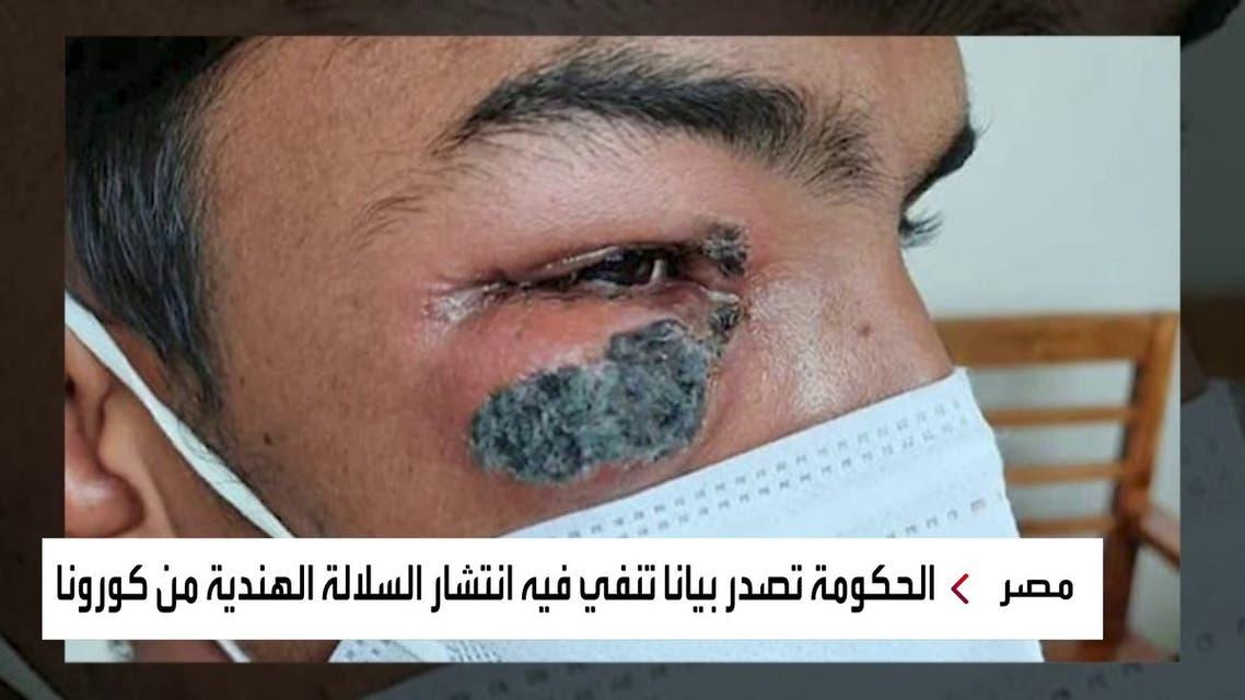 الحكومة المصرية تنفي انتشار مرض الفطر الأسود