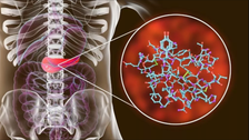 دراسة صادمة: كورونا يتسلل للبنكرياس ويصيب بعض المرضى بالسكري