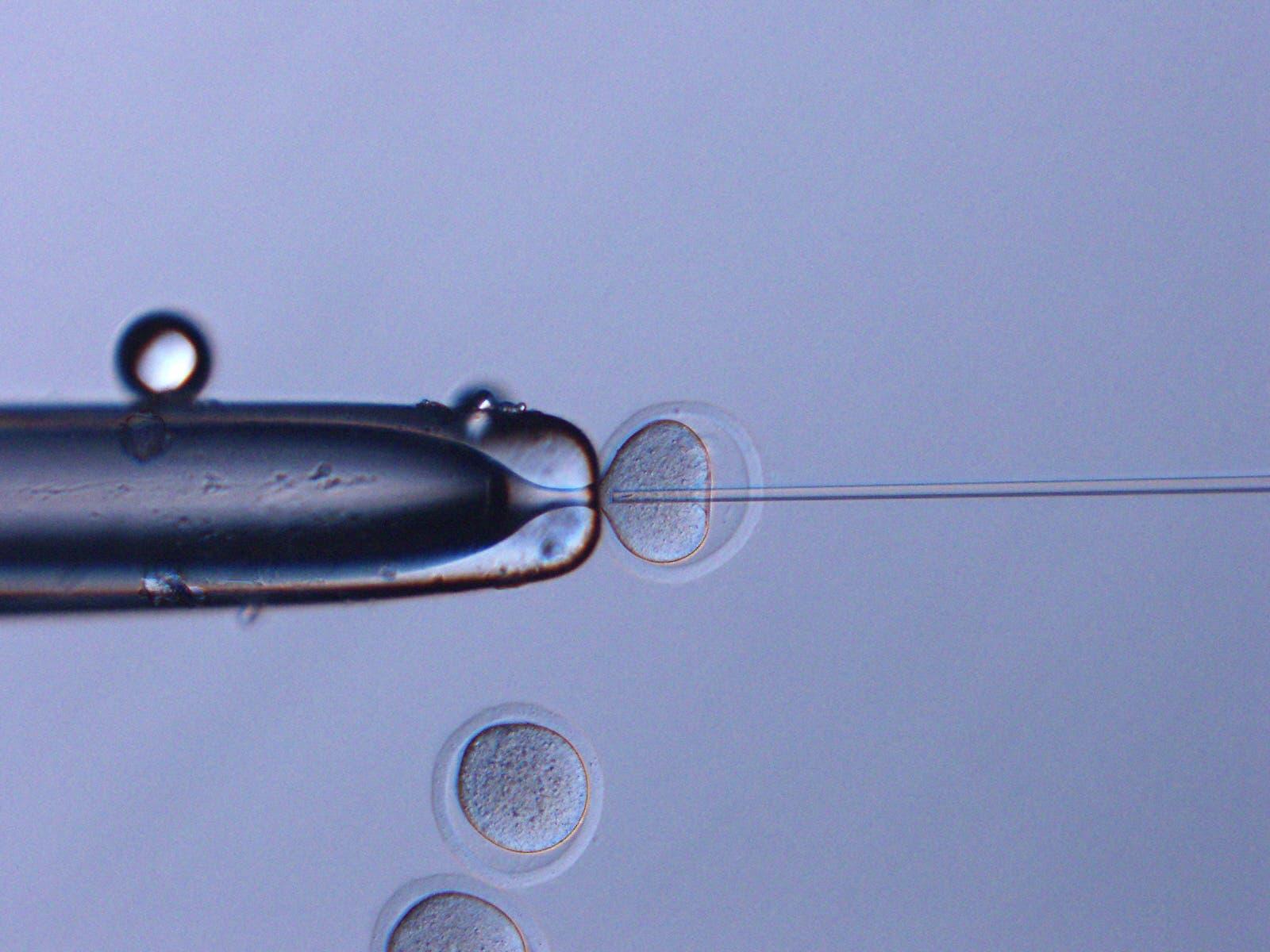 This July 21, 2020, image courtesy of Teruhiko Wakayama, University of Yamanashi, shows space sperm were injected into oocytes. This method was named Intracytoplasmic Sperm Injection (ICSI). (AFP)
