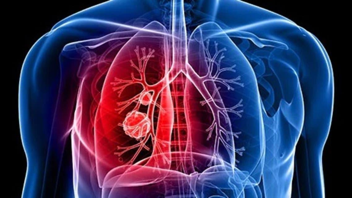 493ss_thinkstock_rf_lung_cancer_illustration