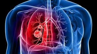 14 علامة غير متوقعة على احتمال الإصابة بسرطان الرئة